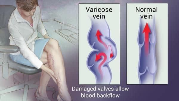 Name:  varicose veins 11.jpg Views: 19 Size:  30.7 KB
