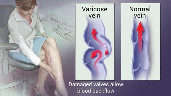 Name:  varicose veins 11.jpg Views: 12 Size:  30.7 KB